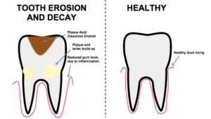 Tooth Demineralistion